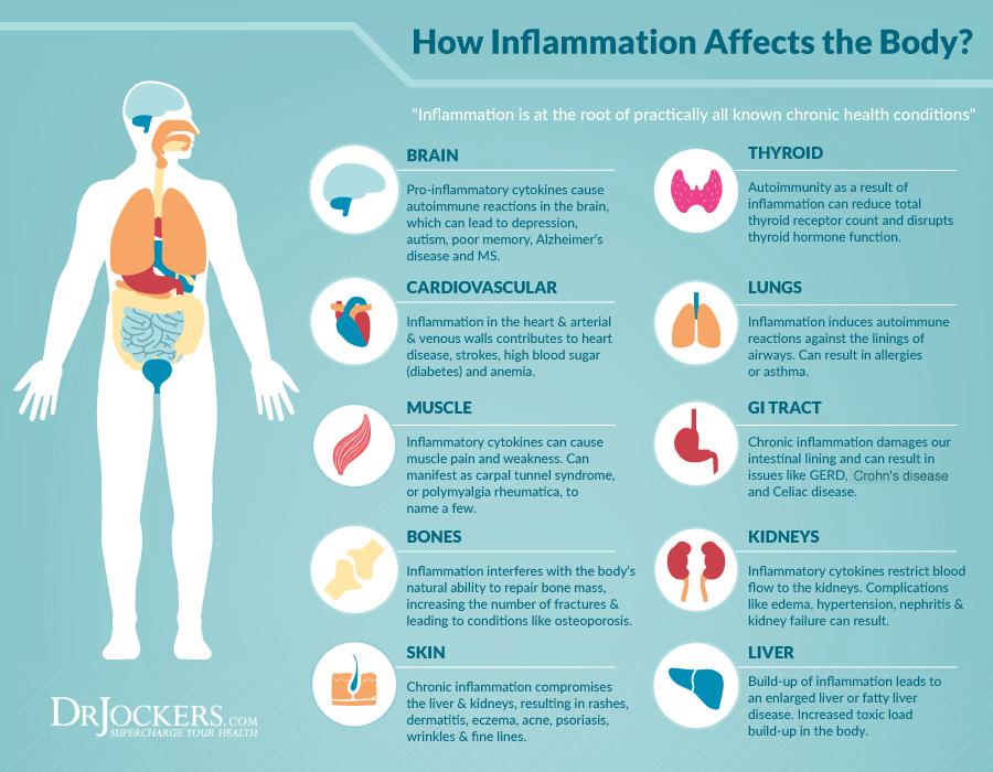 Inflammation-diagram